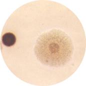 유레아플라즈마 (Ureaplasma Urealytium)